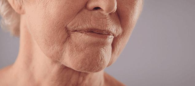 piel flácida y con arrugas