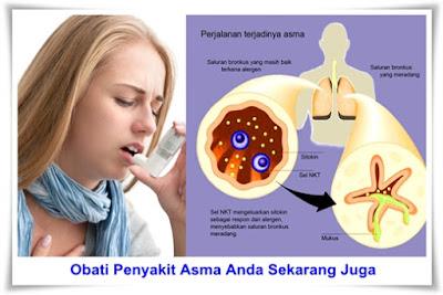 Obat Herbal Asma Yang Aman Untuk Anak Sampai Ibu Hamil