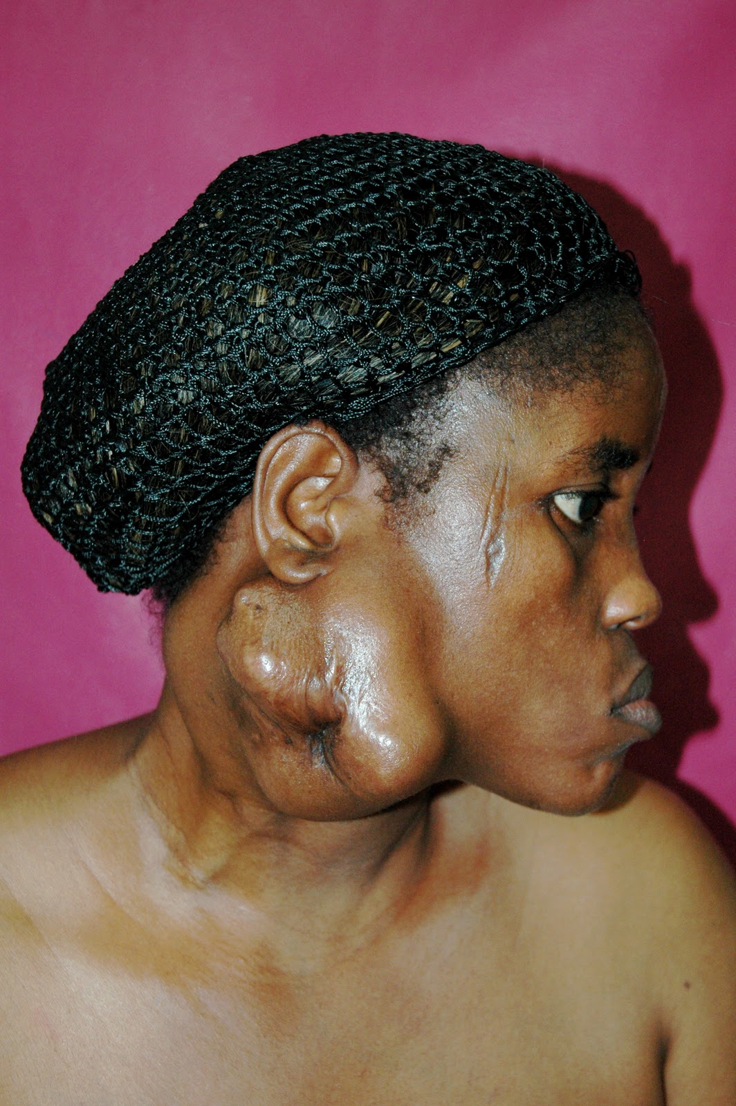 Adenoid Face...