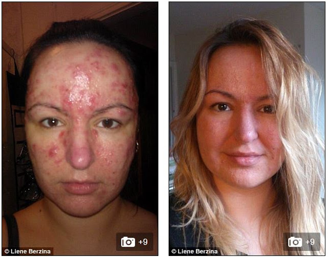 colloidal silver acne before and after picture/photo