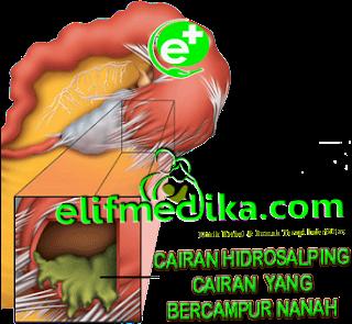 Terapi Obat Adnexitis (Infeksi Radang Panggul)