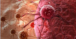 Πότε τα κόπρανα δείχνουν καρκίνο;