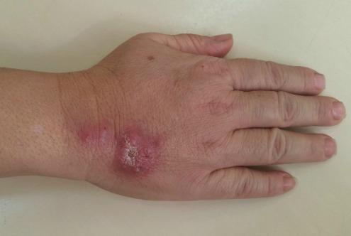 Como curar a pele de pernas de um fungo