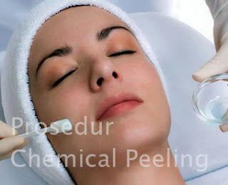 Menghilangkan Jerawat dengan Chemical Peeling