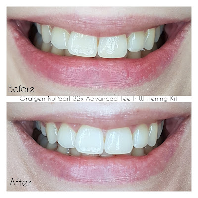 Oralgen NuPearl 32x Advanced Teeth Whitening Kit before and after