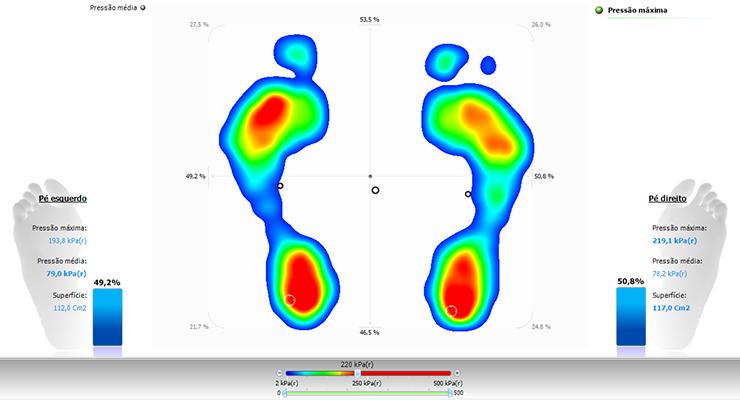 62f6c849072 ... permanece sobre a placa apoiando os dois pés enquanto são coletados os  dados da variação de pressão