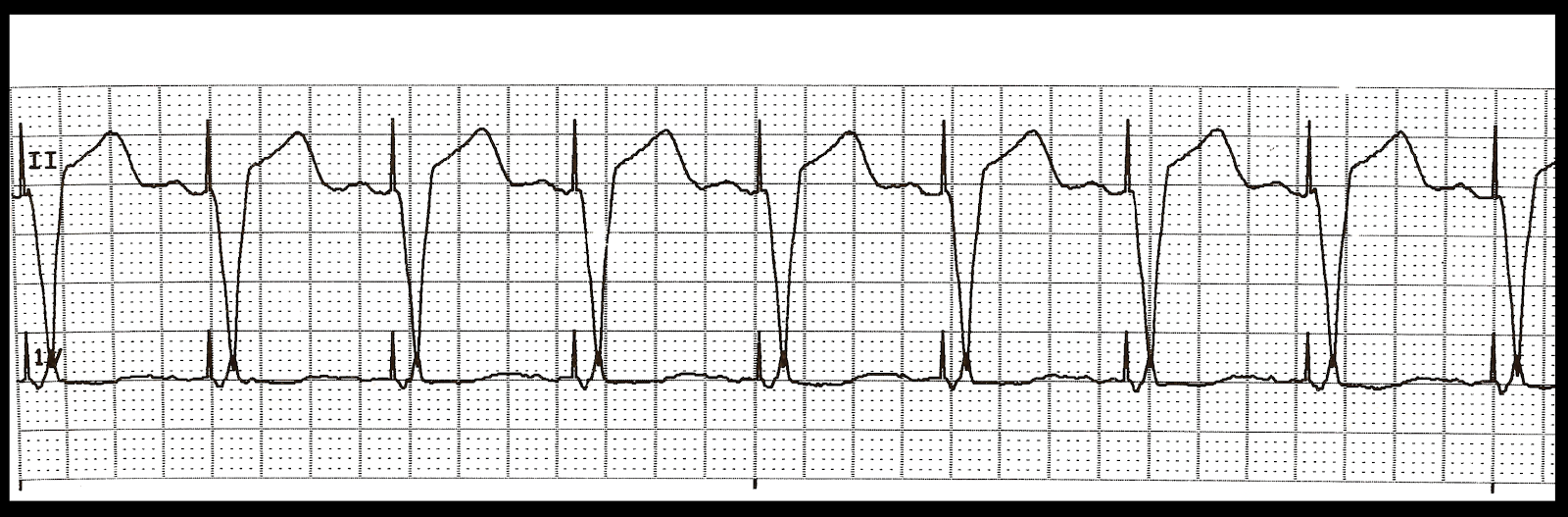 biventricular pacing for atrioventricular block and - 1600×527