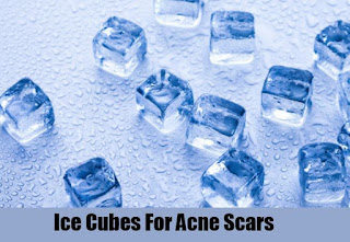 Can Ice Remove Acne Scars ?