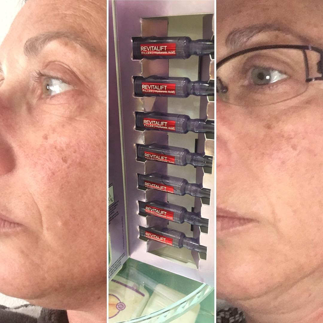 Solo Yo Ampollas Revitalif Filler ácido Hialurónico 7 Días L Oréal Paris