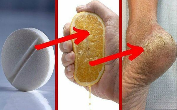 Here's The Secret To Removing Calluses And Foot Fungi In 2 Days