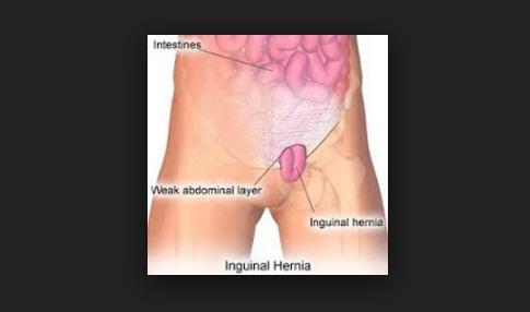 Cara Mengatasi Usus Turun/Hernia Secara Alami, Aman Tanpa Efek Samping (Obat Turun Berok)