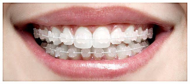 Programming Tips And Tutorials Dica Dentista Clareamento Dental E