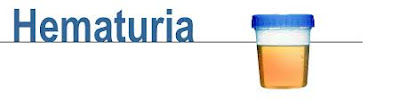 hematuria-www.healthnote25.com