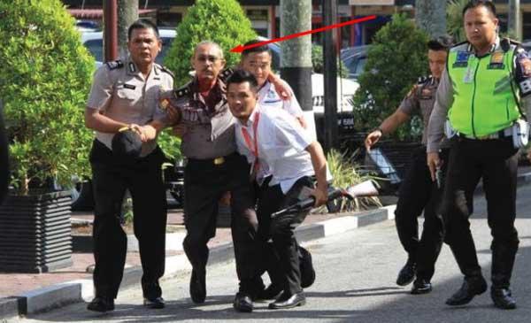 Polisi-Riau-Terluka