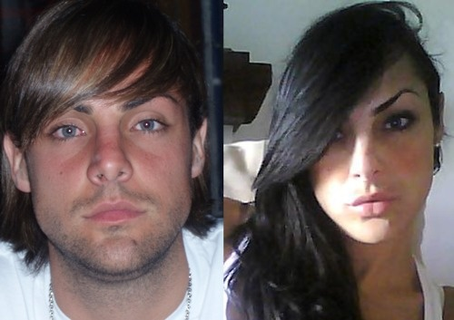 plastic surgery photos sexual reassignment surgery jpg 422x640
