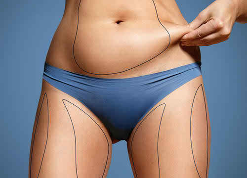 CoolSculpting Froze Off My Belly Fat, And This Is How It Felt