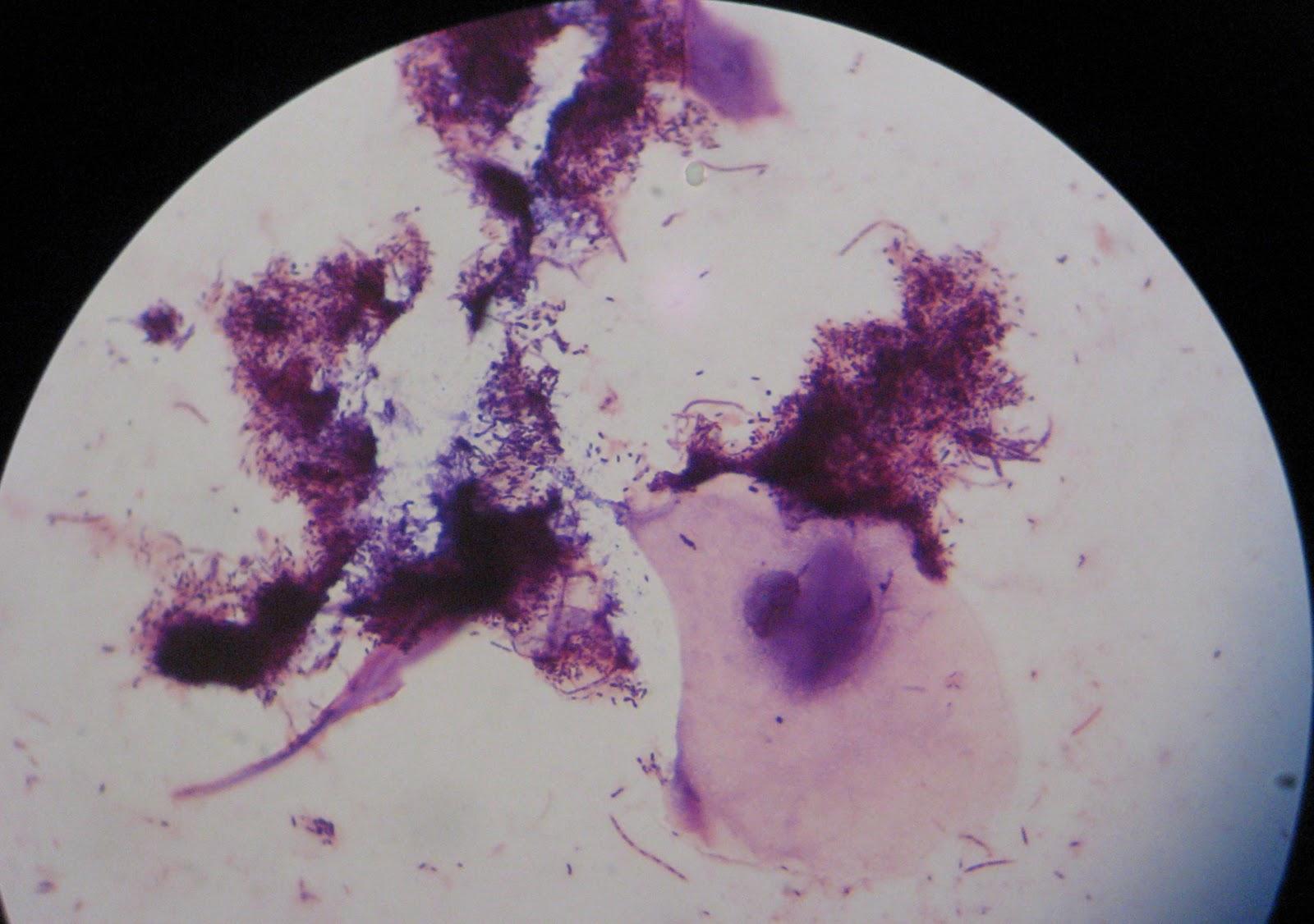 Dvc Microbiology 146 Fall 11 Gard Lab 35 Oral Microbiota