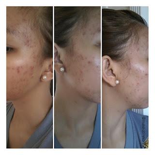 Safeguard Derma Sense Facial Cleanser Review