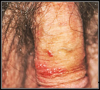 genital warts photos