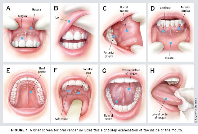 Cancer en la boca