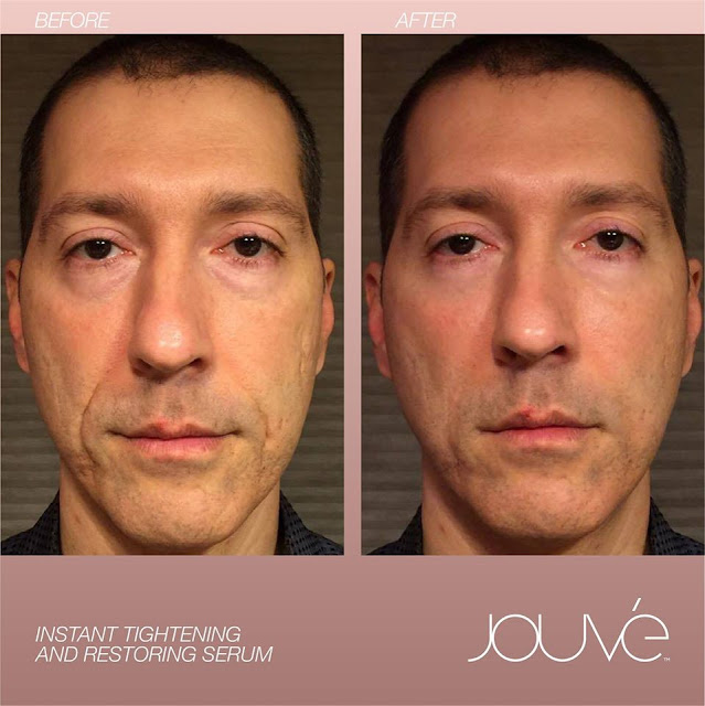 Jouveskin Before After