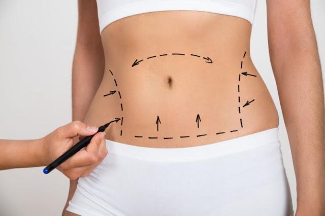 Cirurgia plástica no umbigo é a nova tendência entre mulheres