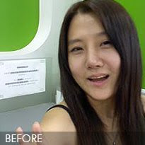 짱이뻐! - Nose Revision Surgery at Korean Rhinoplasty Specialized Hospital