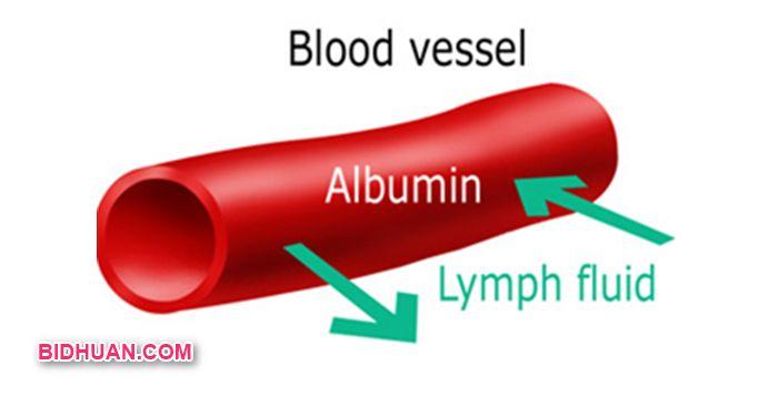 Fungsi albumin - Pemeriksaan albumin rendah
