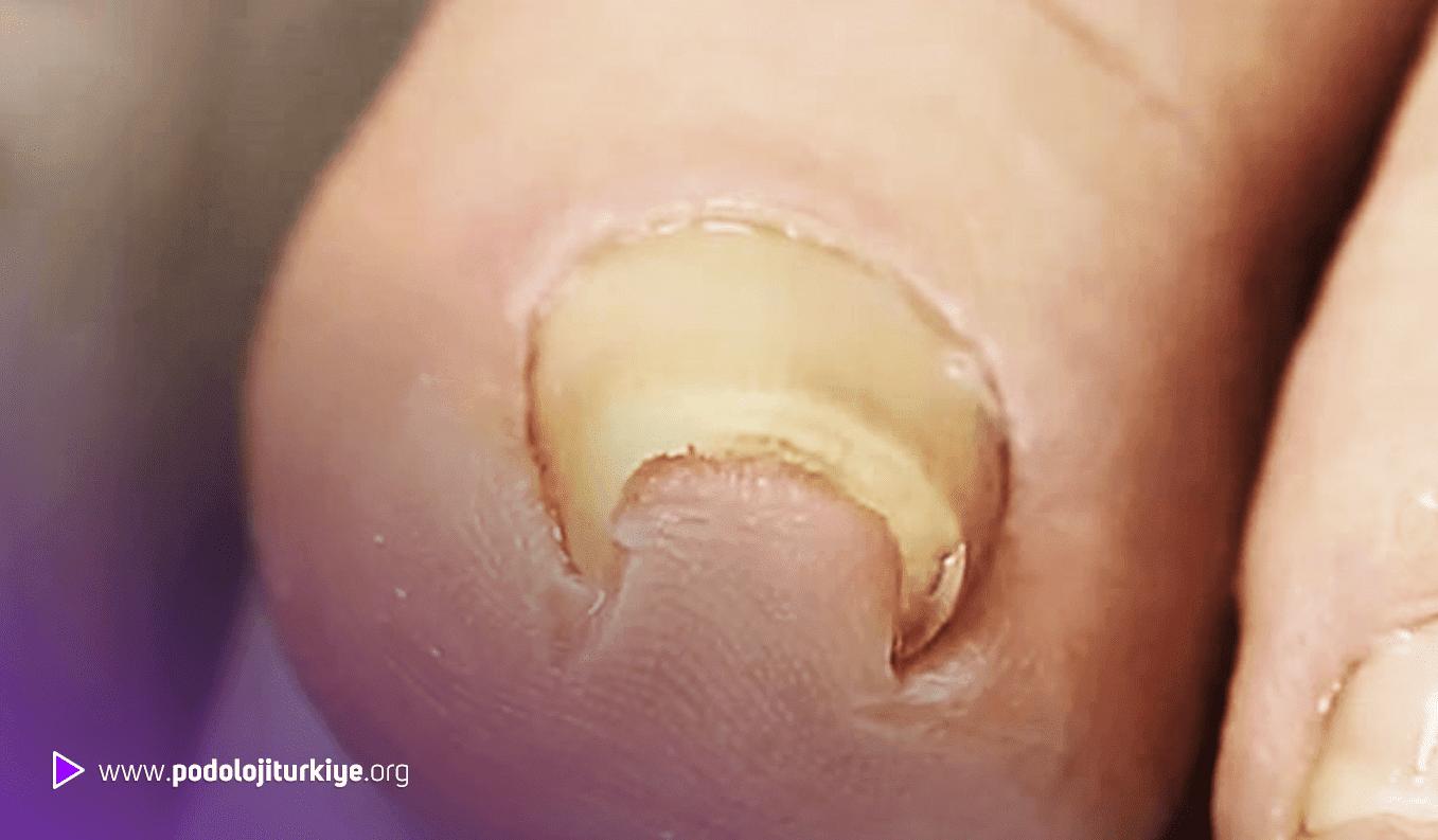 Tırnak Batması (Onychocryptosis)