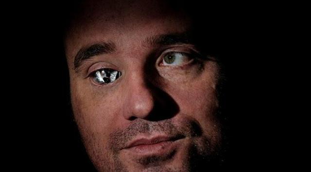 Buta Sebelah, Pembuat Film Asal Kanada Ini Mengganti Matanya Dengan Kamera