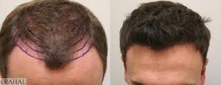 saç ektirme 7