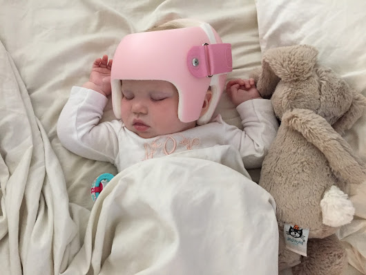 Our Journey with Positional Plagiocephaly
