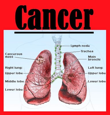 Stage 4 Lung Cancer and Survival Rate