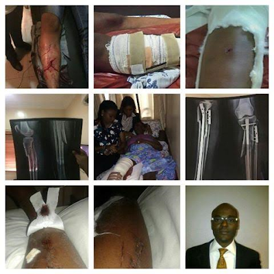 Victim of domestic violence, Ivie Edobor, shares her story, cries for justice (see photos)