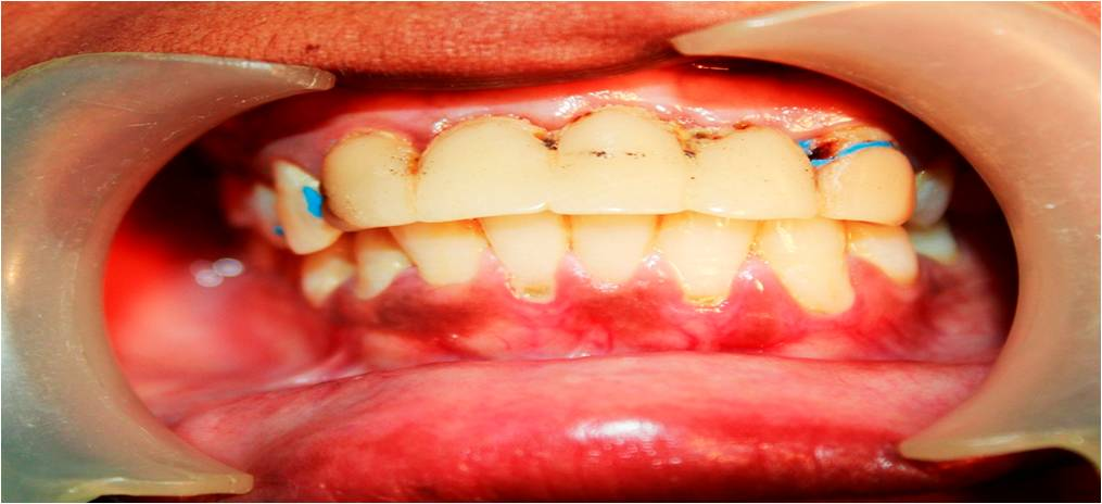 Chinthamani Laser Dental Clinic: REPLACING THE MISSING FRONT