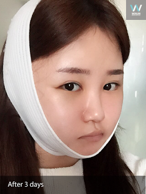 Korean Face Contouring And Buccal Fat Removal Makes My Face Slimmer
