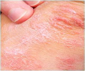 Skin Cancer Warning Signs Signs Of Skin Cancer Finding The Threat