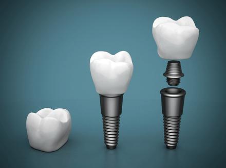 dental implant Melbourne - captivate dental