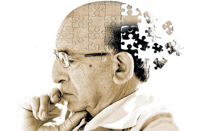 I primi segni di Alzheimer che tutti gli adulti dovrebbero conoscere