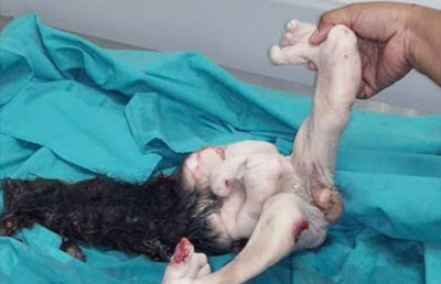15-year-old unborn fetus