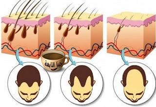 زراعة الشعر في السعودية الخبر| أفضل المراكز والتكلفة والأطباء،سنتحدث عن مراكز زراعة الشعر في الخبر، مميزات زراعة الشعر في الخبر،عيوب زراعة الشعر في الخبر،تكلفة زراعة الشعر في الخبر،مقارنة بين تكلفة زراعة الشعر في السعودية الخبر وتكلفة زراعة الشعر في تركيا وتكلفة زراعة الشعر في مصر ومقارنة بين مراكز زراعة الشعر في الخبر ومنها،مستشفى أدمة بالخبر،زراعة الشعر في مستشفى الموسي بالخبر،ابو اللو بالخبر لزراعة الشعر،عيادة امجد الحقيل بالدمام،مركز العناية بالشعر والبشرة Hair And Skin Care center،مركز أساس العناية essential Care،مستشفى فينتشي لزراعة الشعر بالخبر Vinci Hair Clinic،مركز المواساة،كما سنتحدث عن أسباب الصلع في الرجال وعلاج الصلع