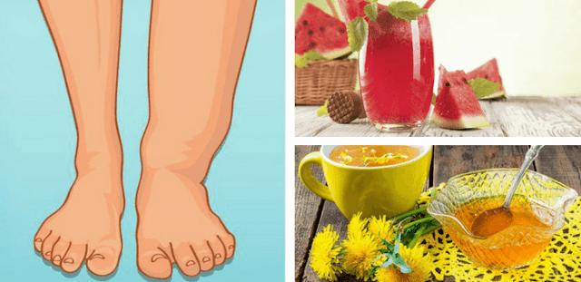 remedios para la retención de líquidos