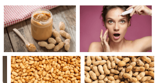 Do Peanuts Cause Acne?