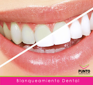 http://clinicadental.uy/blanqueamiento.html