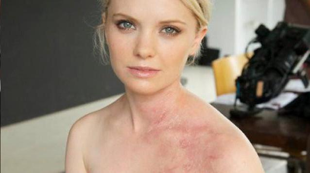 File:May Some Specific Sweet Skin Systemic Disorder.svg