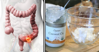 Doctors Are A Shock: This Kills 93% Of Colon Cancer In Just 2 Days