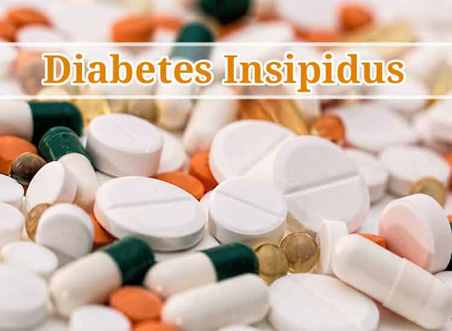 What is Diabetes Insipidus exactly? | Diabetes | Health | How Webs | United States | USA
