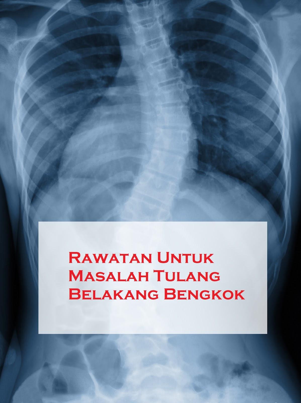 Tulang Belakang Bengkok Ke Samping : tulang, belakang, bengkok, samping, Rawatan, Untuk, Masalah, Tulang, Belakang, Bengkok, Sihat, Nikmat