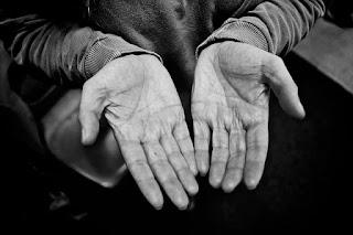 Cara mengatasi telapak tangan kasar