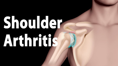 shoulder arthritis treatment